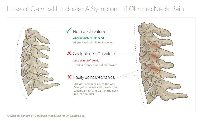 Content and design for patient education material on chronic neck pain.